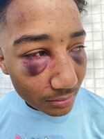 This Dec 31 2020 photo provided by John L. Burris Law shows 17 year old Devin Carter with severe bruising after a beating by Stockton Police officers. A grand jury in California has indicted two police officers on felony assault charges in the alleged beating of an unresisting Black teenager last year. The San Joaquin County district attorney announced the indictments against the two former Stockton police officers Friday Sept. 17, 2021. (John L. Burris Law via AP)
