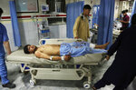 A wounded man is brought into a hospital after an explosion at wedding hall in Kabul, Afghanistan, Sunday, Aug. 18, 2019. An explosion ripped through a wedding hall on a busy Saturday night in Afghanistan's capital and dozens of people were killed or wounded, a government official said. Hundreds of people were believed to be inside. (AP Photo/Nishanuddin Khan)