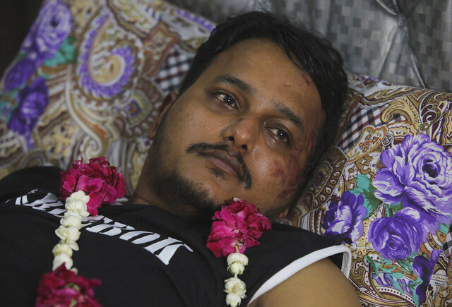 Mohammad Zubair, a passenger who survived a plane crash, is visited by relatives at his home in Karachi, Pakistan, Saturday, May 23, 2020. When the plane jolted violently, Zubair thought it was turbulence. Then the pilot came on the intercom to warn that the landing could be
