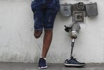 In this Oct. 6, 201 photo, Venezuelan migrant Freddy Brito, who lost a leg when he was shot years ago at a party in Venezuela, stands next to his prosthetic leg at the homeless shelter where he is living with his wife in Lima, Peru. Brito said thieves once tried to make off with his prosthetic limb as he sat on a bench near his home, unsuccessfully trying to remove it after demanding his watch and wedding ring. (AP Photo/Martin Mejia)