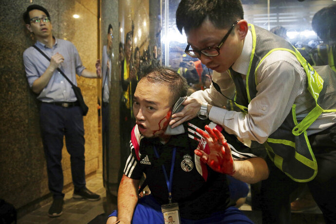 District councilor Andrew Chiu receives medical treatment in Hong Kong, on Sunday, Nov. 3, 2019. Riot police stormed several malls in Hong Kong on Sunday in a move to thwart more pro-democracy protests, though violence did break out when a knife-wielding man slashed several people and bit off part of the ear of a local pro-democracy politician. (Elson Li/HK01 via AP)