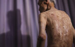 FILE - In this June 30, 2015, file photo, Sumiteru Taniguchi, a survivor of the 1945 atomic bombing of Nagasaki, shows his back with scars of burns from the atomic bomb explosion, during an interview at his office in Nagasaki, southern Japan. With dwindling survivors, Nagasaki marked 75th anniversary of US atomic bombing that killed more than 70,000 people on Sunday, Aug. 9, 2020. (AP Photo/Eugene Hoshiko, File)