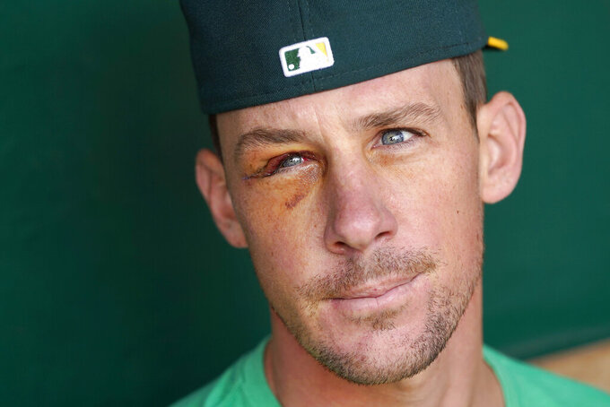 Oakland Athletics pitcher Chris Bassitt speaks to reporters before a baseball game between the Athletics and the New York Yankees in Oakland, Calif., Saturday, Aug. 28, 2021. Bassitt returned to the Bay Area on Friday following facial surgery in Chicago, where he was hit with a line drive the week before. (AP Photo/Jeff Chiu)
