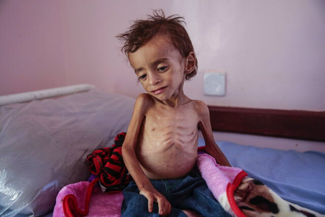 In this Oct. 1, 2018 file photo, a malnourished boy sits on a hospital bed at the Aslam Health Center, Hajjah, Yemen. Houthi rebels in Yemen have blocked half of the United Nations' aid delivery programs in the war-torn country — a strong-arm tactic to force the agency to give them greater control over the massive humanitarian campaign, along with a cut of billions of dollars in foreign assistance, according to aid officials and internal documents obtained by The Associated Press. (AP Photo/Hani Mohammed, File)