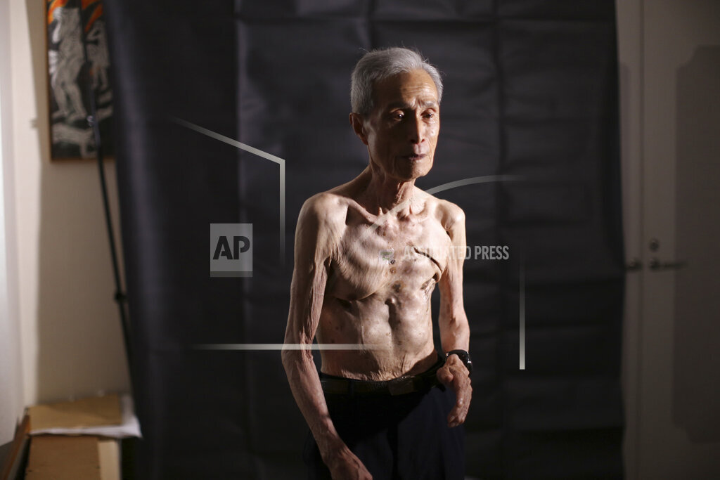 Japan A Bomb One Man Scars Photo Essay