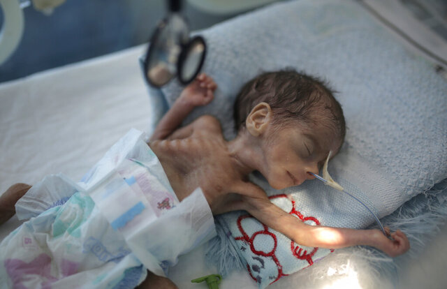 FILE - In this Nov. 23, 2019 file photo, a malnourished newborn baby lies in an incubator at Al-Sabeen hospital in Sanaa, Yemen. The United Nations Children's Fund on Monday, Dec. 7, 2020, launched a global appeal for a record $2.5 billion of emergency assistance for the Middle East and North Africa, saying the funds were necessary to respond to the needs of millions of children across a region hit hard by conflict, natural disaster and the coronavirus crisis. (AP Photo/Hani Mohammed, File)