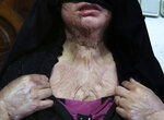 CORRECTS AGE OF KHADEJA TO 18 --  In this Monday, Feb. 18, 2019, photo, Khadeja, 18, who was burned by a pot of scalding hot water thrown by her husband, shows her wounds, at a women's shelter office in Herat, Afghanistan. The suffering of young women like Khadeja is why women rights activists say they are demanding a seat at the table in negotiations between the government and the Taliban over peace and Afghanistan's future. (AP Photo/Rahmat Gul)