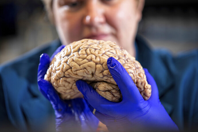 In this Aug. 14, 2019 photo provided by the University of Kentucky, Donna Wilcock, of the Sanders-Brown Center on Aging, holds a brain in her lab in Lexington, Ky. She says that contrary to popular perception,