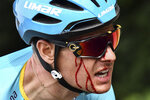 Denmark's Jakob Fuglsang bleeds after crashing during the first stage of the Tour de France cycling race over 194.5 kilometers (120,86 miles) with start in Brussels and finish in Brussels, Saturday, July 6, 2019. (Jeff Pachoud/ Pool Photo via AP)