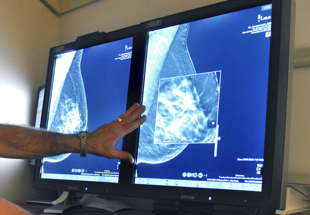 FILE - This July 31, 2012, file photo shows a mammogram, a test to detect cancer. A new study suggests that adding MRIs to mammograms to screen women with very dense breasts may find more cancers but also gives a lot of false alarms. (Torin Halsey/Times Record News via AP, File)