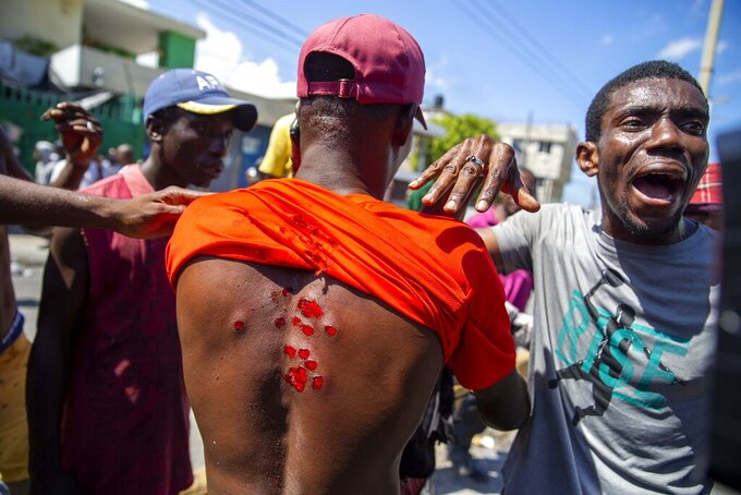 A protester shows his wounds caused by rubber bullets fired by police to disperse protesters demanding the resignation of President Jovenel Moise in Port-au-Prince, Haiti, Saturday, Oct. 17, 2020. The country is currently experiencing a political impasse without a parliament and is now run entirely by decree under Moise. ( AP Photo/Dieu Nalio Chery)