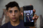 Palestinian youth, Tareq Zubeidi, 15, shows an image of his wounds at his house, in the West Bank village of Silat ad-Dhahr, Tuesday, Aug. 31, 2021. Zubeidi says he was abducted and beaten by a group of Israeli settlers after they found him and his friends eating snacks near an evacuated hilltop settlement in the occupied West Bank. More than two weeks after the Aug. 17 incident, he says he can barely walk and is afraid to leave his home. (AP Photo/Majdi Mohammed)
