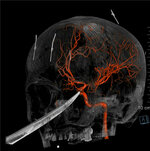 This 3D computer graphic model made from X-Ray imagery by The University of Kansas Health System shows how a tip of the knife stopped right on and was pressed against the carotid artery as the X-Ray image shows the skull of Eli Gregg. The 15-year-old Kansas boy is recovering days after doctors removed a 10
