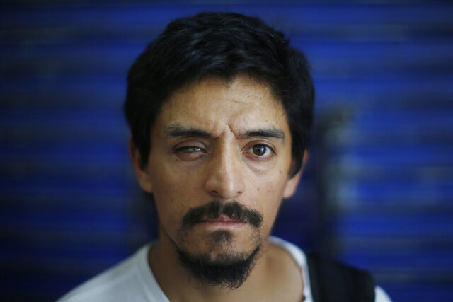 In this Friday, Dec. 13, 2019 photo, Eliacer Flores, who claims he he received eye injuries after being shot with a shotgun by the police during the ongoing anti-government demonstrations, poses for a portrait during a protest in front of Palacio de La Moneda, in Santiago, Chile. The United Nations released on Friday a report which stated that there have been serious violations of human rights during the repression of recent protests in Chile. (AP Photo/Luis Hidalgo)