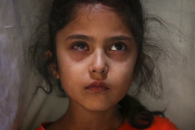 Six-year-old Muneefa Nazir, a Kashmiri girl whose right eye was hit by a marble ball shot allegedly by Indian Paramilitary soldiers on Aug. 12, stands outside her home in Srinagar, Indian controlled Kashmir, Sept. 17, 2019. The image was part of a series of photographs by Associated Press photographers which won the 2020 Pulitzer Prize for Feature Photography. (AP Photo/Mukhtar Khan)