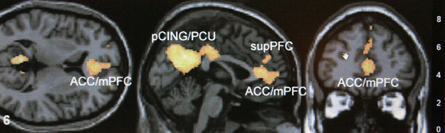 FILE - This Jan. 30, 2006 file photo shows a functional magnetic resonance imaging scan on a computer screen at an Emory University lab in Atlanta. Using large magnets, the scans detect where oxygenated blood flows, allowing scientists to indirectly measure brain activity. Researchers are becoming increasingly critical of some brain scan studies that purport to show exactly how our minds shape our behavior. (AP Photo/Ric Feld, File)