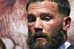 Undefeated IBF Super Middleweight Champion Caleb Plant is seen with a cut under his eye after a scuffle with unified WBC/WBO/WBA super middleweight champion Canelo Alvarez during a news conference Tuesday, Sept. 21, 2021, in Beverly Hills, Calif. to announce their 168-pound title bout. The fight is scheduled for Saturday, Nov. 6 in Las Vegas. (AP Photo/Mark J. Terrill)