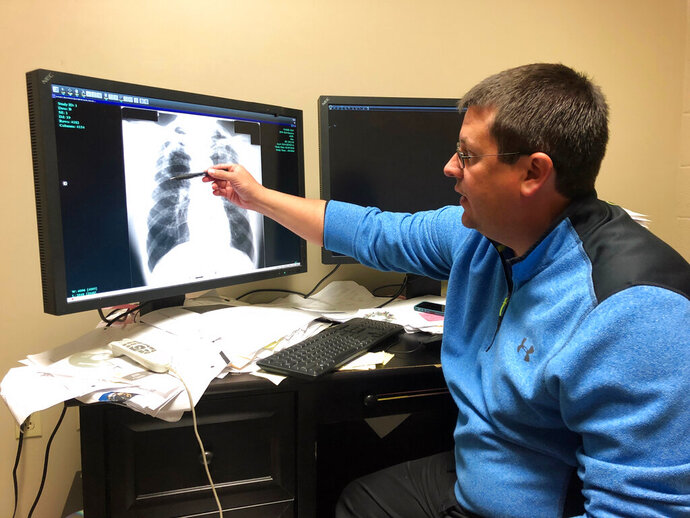 FILE - In this Jan. 24, 2019 file photo Dr. Brandon Crum points to the X-ray of a black lung patient at his office in Pikeville, Ky. A report released Tuesday, Dec. 10 by the Washington-based group Taxpayers for Common Sense says a cut to the tax that coal companies pay to fund the Black Lung Disability Trust Fund, a trust for sick miners, will cost taxpayers billions of dollars.  (AP Photo/Dylan Lovan, File)