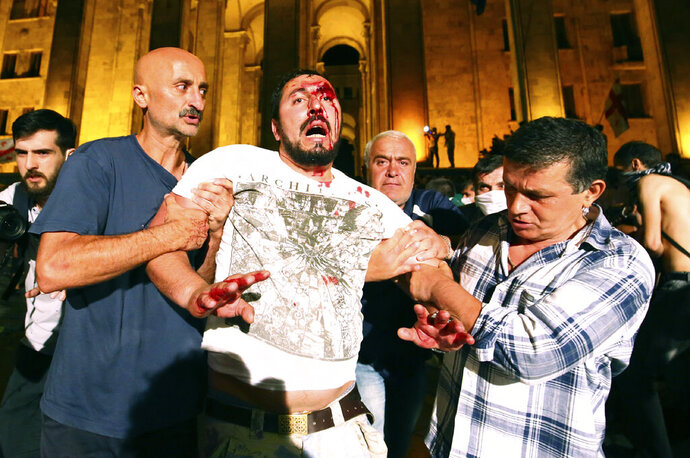 Opposition demonstrators help a wounded man during a protest at Georgian Parliament to call for the resignation of the speaker of the Georgian Parliament in Tbilisi, Georgia, Friday, June 21, 2019. Police have fired a volley of tear gas at a massive throng of protesters outside the Georgian national parliament, who are trying to storm the building and are demanding the government's resignation.(AP Photo/Zurab Tsertsvadze)
