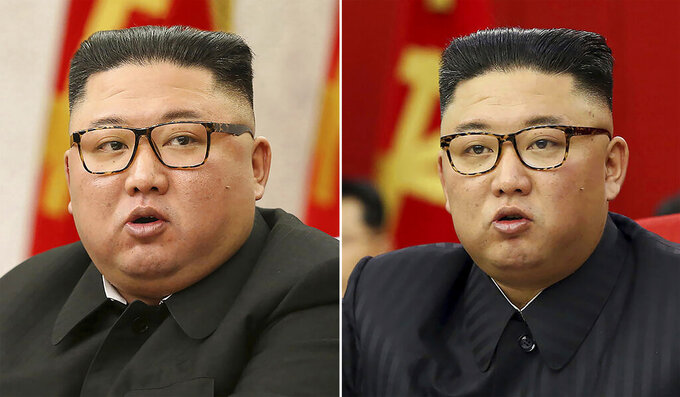 This combination of file photos provided by the North Korean government, shows North Korean leader Kim Jong Un at Workers' Party meetings in Pyongyang, North Korea, on Feb. 8, 2021, left, and June 15, 2021. Last time when Kim faced rumors about his health, the North Korean leader had walked with a cane, missed an important state anniversary or panted for breath. Now, the 37-year-old faces fresh speculation about his health because he looks thinner noticeably in recent state media images. Independent journalists were not given access to cover the event depicted in this image distributed by the North Korean government. The content of this image is as provided and cannot be independently verified. (Korean Central News Agency/Korea News Service via AP, File)