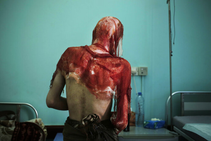 Monir al-Sharqi walks to his bed after nurses changed the dressings on his burns, at the Marib General Hospital in Yemen in this July 25, 2018 photo. Al-Sharqi, a lab technician, disappeared for a year, until he was dumped in a stream, half-naked, emaciated and bearing horrific marks of torture. He had burns from acid over his head, back and shoulders, so severe that his jacket stuck to his melted skin. Some members of his family believe he was detained and tortured by Yemen's Houthi rebels because of his past political activism. (AP Photo/Nariman El-Mofty)