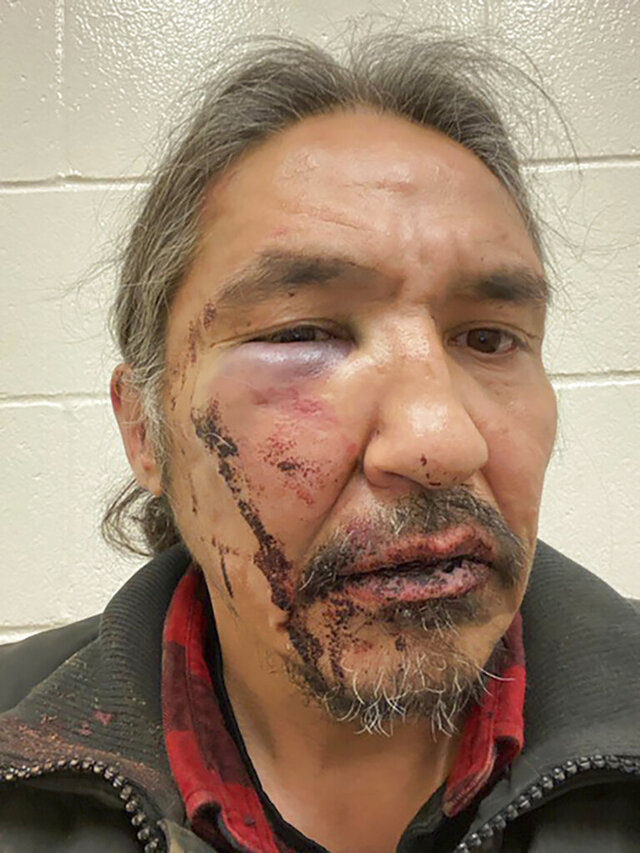 This March 10, 2020 photo provided by Chief Adam, shows the bloodied face of Athabasca Chipewyan First Nation Chief Allan Adam after a confrontation with Royal Canadian Mounted Police. Canadian Prime Minister Justin Trudeau says police dashcam video of the violent arrest of the Canadian aboriginal chief is shocking and not an isolated incident. The arrest has received attention in Canada as a backlash against racism grows in the wake of the death of George Floyd, a black man who died after a white Minneapolis police officer pressed a knee to his neck.  (Allan Adam/The Canadian Press via AP)