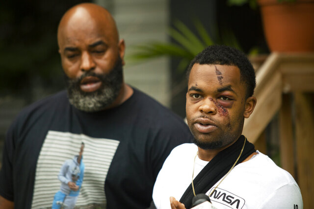 In this Tuesday, May 19, 2020 photo, DarQuan Jones, right, speaks during a press conference alongside his father, Daryl Jones Jr., in Des Moines, Iowa. Jones, 22, was assaulted by three white men in the early morning of May 16 in a racially motivated attack, resulting in five facial fractures and a broken wrist. Jones said there was an attempt to drown him in a nearby creek, and at least one perpetrator repeatedly used racial slurs. As of Friday, June 19, 2020,, one suspect has been arrested and one additional warrant issued for arrest. (Olivia Sun/The Des Moines Register via AP  )