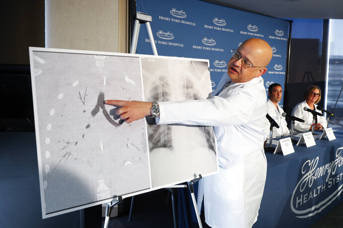 Dr. Hassan Nemeh, Surgical Director of Thoracic Organ Transplant, shows areas of a patient's lungs during a news conference at Henry Ford Hospital in Detroit, Tuesday, Nov. 12, 2019. A Henry Ford Health System medical team performed a double lung transplant for a patient whose lungs were irreparably damaged from vaping. (AP Photo/Paul Sancya)