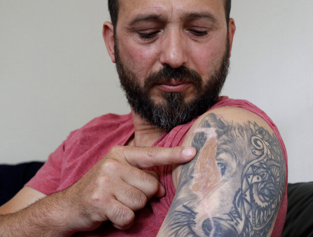 In this Tuesday, Feb. 25, 2020, photo, Al Noor mosque shooting survivor Temel Atacocugu points to the scar of a bullet wound in his arm during an interview at his home in Christchurch, New Zealand. When the gunman walked into the mosque, Atacocugu was kneeling for Friday prayers. He looked up into the man's face, thinking he was a police officer because of his paramilitary outfit. Time slowed. Temel saw a puff of smoke come from the raised gun, felt a bullet smash into his teeth, and thought: