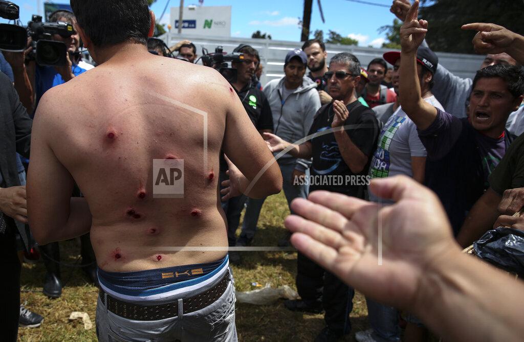 Argentina Clashes