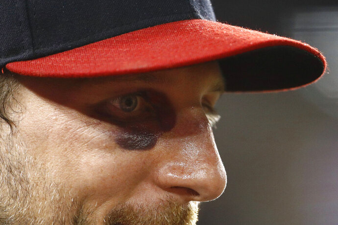 A bruise is visible below Washington Nationals starting pitcher Max Scherzer's right eye as he stands in the dugout in the seventh inning of the second baseball game of a doubleheader against the Philadelphia Phillies, Wednesday, June 19, 2019, in Washington. Scherzer broke his nose Tuesday while taking batting practice. (AP Photo/Patrick Semansky)