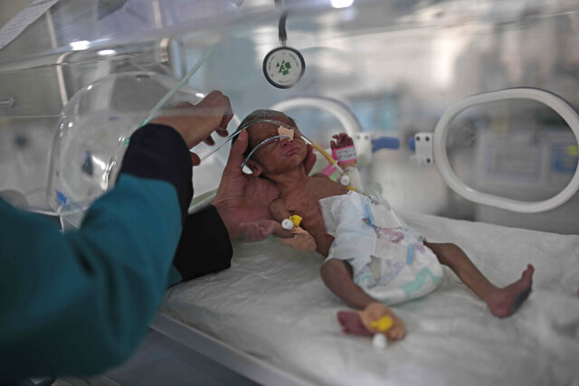 "FILE - In this June 27, 2020 file photo, a medic checks a malnourished newborn baby inside an incubator at Al-Sabeen hospital in Sanaa, Yemen. Human Rights Watch warned Monday, Sept. 14, 2020 that warring parties in Yemen's yearslong conflict are ""severely restricting"" the delivery of desperately needed aid as the country slides toward famine amid the coronavirus pandemic. (AP Photo/Hani Mohammed, File)"