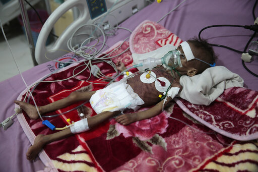 FILE - In this Nov. 3, 2020, file photo, malnourished girl, Rahmah Watheeq, receives treatment at a feeding center at Al-Sabeen hospital in Sanaa, Yemen. Countries like Lebanon, Syria, Iraq, Lebanon and Yemen are all teetering on the brink of humanitarian catastrophe with an economic implosion that threatens to throw the region into even deeper turmoil. (AP Photo/Hani Mohammed, File)