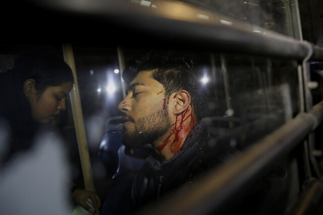 An Indian student sits bleeding inside a bus after he was detained by police during a protest march towards the presidential palace against a recent attack on students by masked men inside Jawaharlal Nehru University, in New Delhi, India, Thursday, Jan. 9, 2020. The protest march Thursday of students and faculty of the esteemed university in New Delhi that was the site of a mob attack earlier this week was violently broken up by police, with police wielding batons to force demonstrators onto buses. (AP Photo/Altaf Qadri)