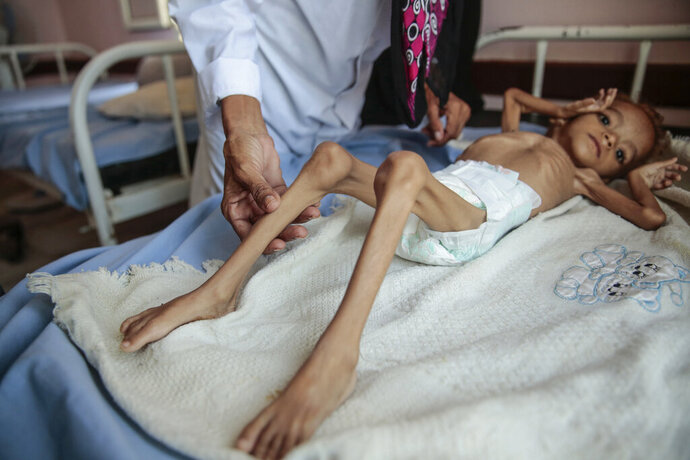 """FILE - In this Oct. 1, 2018, file photo, a severely malnourished boy rests on a hospital bed at the Aslam Health Center in Hajjah, Yemen. A leading aid organization on Monday, Jan. 11, 2021 warned that U.S. Secretary of State Mike Pompeo's move to designate Yemen's Iran-backed Houthi rebels as a """"foreign terrorist organization"""" would deal another """"devastating blow"""