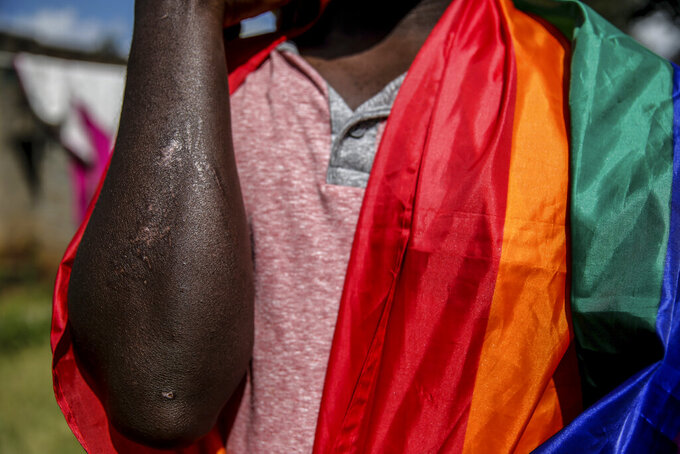In this photo taken Thursday, June 11, 2020, Ugandan gay refugee Martin Okello shows the scars he suffered in an attack in May, outside the house he shares with other LGBT refugees in Nairobi, Kenya. His life in Uganda was shattered in 2014 when a male sex worker tried to extort him for $10 and outed him as gay. Okello was fired from the Christian radio station where he worked and was kicked out of his home by his Catholic parents. (AP Photo/Brian Inganga)
