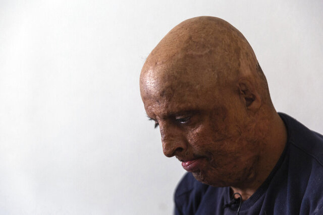 Hosni Kalaia, 49, looks down in his house in Kasserine, Tunisia, Friday, Dec. 11, 2020. He's among those Tunisians who followed the example of Mohammed Bouazizi, a 26-year-old fruit seller who set himself ablaze on Dec. 17, 2010, to protest police harassment. Kalaia spent three years in a hospital and then a private clinic recovering from his burns. (AP Photo/Riadh Dridi)