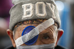 "A Nepalese elderly patient waits for his eye patch to be removed at the Tilganga Eye Center in Kathmandu, Nepal, March 26, 2021. Nepal's ""God of Sight"" eye doctor renowned for his innovative and inexpensive cataract surgery for the poor is taking his work beyond the Himalayan mountains to other parts of the world so there is no more unnecessary blindness in the world. Dr. Sanduk Ruit, who has won many awards for his work and performed some 130,000 cataract surgery in the past three decades, is aiming to expand his work beyond the borders of his home country and the region to go globally. (AP Photo/Niranjan Shrestha)"