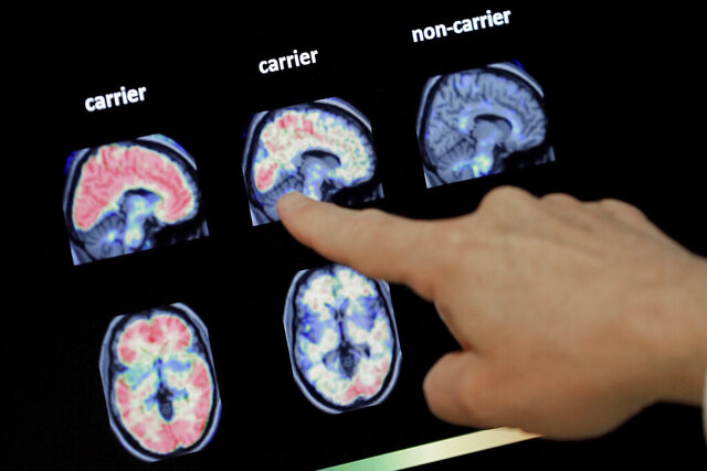 FILE - In this Aug. 14, 2018 file photo, a doctor looks at a PET brain scan at the Banner Alzheimers Institute in Phoenix. Two experimental drugs failed to prevent or slow mental decline in a study of people who are virtually destined to develop Alzheimer's disease at a relatively young age because of rare gene flaws. The results announced Monday, Feb. 10, 2020, are another disappointment for the approach that scientists have focused on for many years -- trying to remove a harmful protein that builds up in the brains of people with the disease.  (AP Photo/Matt York, File)