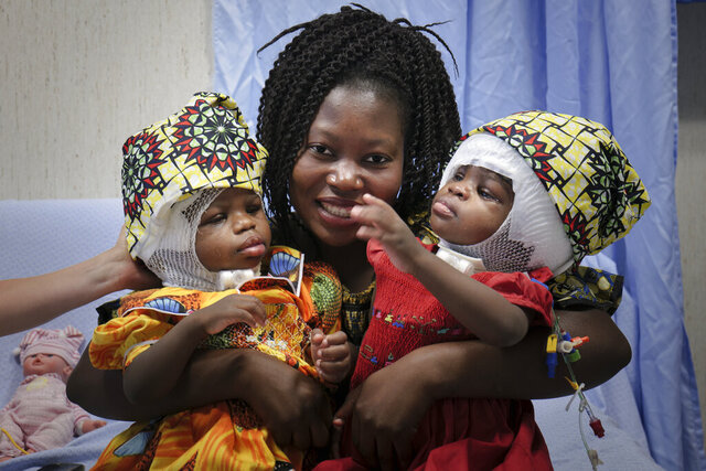 Ermine holds her twins Ervina and Prefina, at the Vatican pediatric hospital, in Rome, June 30, 2020. Doctors at the Vatican's pediatric hospital said Tuesday, July 7, 2020 they have successfully separated conjoined twins whose skulls were fused back-to-back, an exceedingly rare surgery for an equally rare congenital defect. Twins Ervina and Prefina Bangalo were born June 29, 2018 in Mbaiki, Central African Republic sharing the same skull and critical blood vessels around their brains. (Bambino Gesu Hospital via AP)