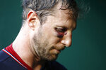 Washington Nationals starting pitcher Max Scherzer walks out of the dugout between innings of the second baseball game of a doubleheader against the Philadelphia Phillies, Wednesday, June 19, 2019, in Washington. (AP Photo/Patrick Semansky)
