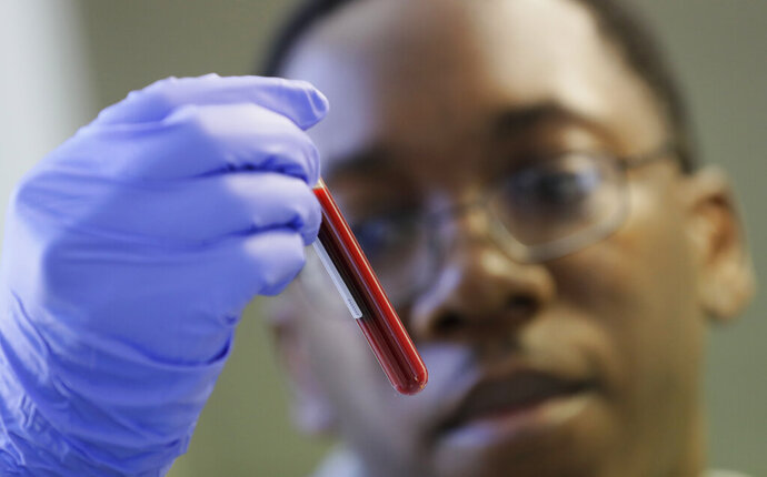 Leon McFarlane a research technician handles a blood sample from a volunteer in the laboratory at Imperial College in London, Thursday, July 30, 2020. Imperial College is working on the development of a COVID-19 vaccine. Scientists at Imperial College London say they are immunizing hundreds of people with an experimental coronavirus vaccine in an early trial after seeing no worrying safety problems in those vaccinated so far. Dr. Robin Shattock told the Associated Press that he and colleagues had just finished a very slow and arduous process of testing the vaccine at a low dose in a small number of participants and would now be expanding the trial to about 300 people, including those over 75. (AP Photo/Kirsty Wigglesworth)