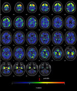 This image provided by The New England Journal of Medicine in April 2019 shows a series brain scans from former NFL players. As a group, they were found to have higher levels of an abnormal protein than a comparison group of healthy men, indicated by red and yellow patches. The protein is a hallmark of a degenerative brain disease that's been linked to repeated head blows. (The New England Journal of Medicine via AP)
