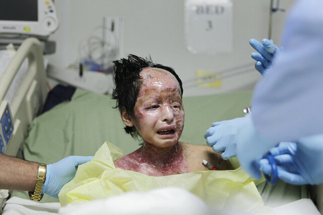 FILE - In this June 9, 2009 file photo, doctors treat eight-year old Razia after she was severely burned when a white phosphorus round hit her home in the Tagab Valley during fighting between French troops and Taliban militants, at the U.S. military hospital in Bagram Air Base, north of Kabul, Afghanistan. A new report by Human Rights Watch and Harvard's human rights clinic released on Monday, Nov. 9, 2020, has documented the use of incendiary weapons and their horrific human cost on civilians over the past decade in conflict zones like Afghanistan, the Gaza Strip and Syria. (AP Photo/Rafiq Maqbool)
