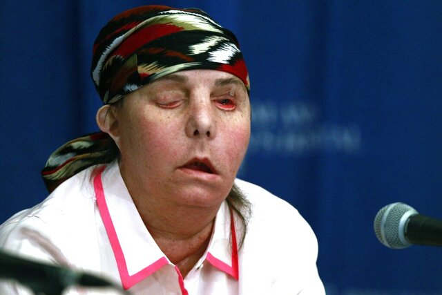 FILE - In this May 1, 2013, file photo, Carmen Blandin Tarleton speaks at Brigham and Women's Hospital in Boston following a face transplant. In February 2007 her estranged husband doused her with industrial strength lye, burning more than 80 percent of her body. In July 2020, Tarleton became the first American and only the second person globally to undergo a second face transplant procedure after her first transplant failed. (AP Photo/Charles Krupa, File)