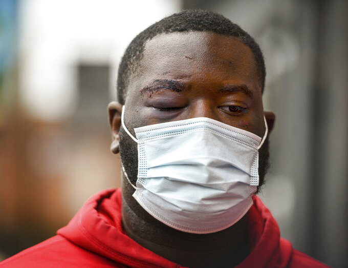 De'Vincent Spriggs stands outside of the Pittsburgh Police Zone 3 station on Wednesday, April 14, 2021, in Pittsburgh. Spriggs told Pittsburgh police Wednesday that Los Angeles Rams defensive lineman Aaron Donald and others assaulted the him at a nightclub last weekend, causing multiple injuries. (Steve Mellon/Pittsburgh Post-Gazette via AP)