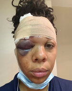 In this Sunday, May 31, 20220 photo provided by LaToya Ratlieff shows LaToya Ratlieff in Delray Beach, Fla., with a swollen eye and head bandaged.  Ratlieff was hit in the face by a police officer's rubber bullet during a Fort Lauderdale protest over the death of George Floyd on May 31. Protests continue in support of Floyd, a black man who died while in police custody in Minneapolis. (LaToya Ratlieff via AP Photo)