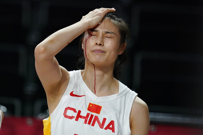 China's Siyu Wang (5) bleeds from her head after colliding with Australia's Katie Ebzery during a women's basketball preliminary round game at the 2020 Summer Olympics in Saitama, Japan, Friday, July 30, 2021. (AP Photo/Charlie Neibergall)