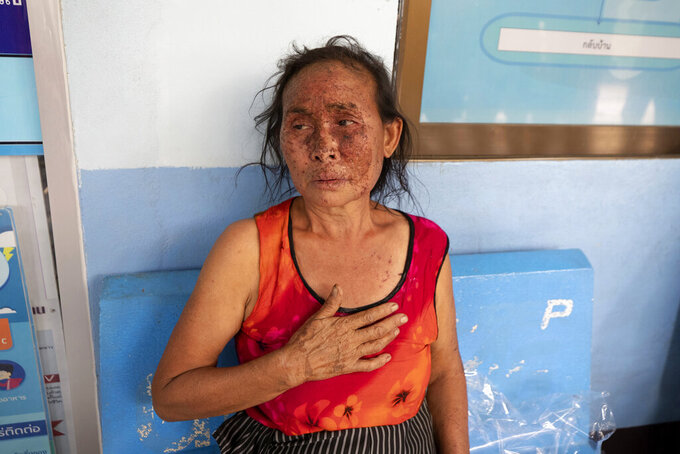 FILE - In this Tuesday March 30, 2021, file photo, an injured Karen villager from Myanmar rests at Ban Mae Sam Laep Health Center in Mae Hong Son province, northern Thailand, after they crossed Salawin river on a boat. Far away in Myanmar's borderlands, millions of others who hail from Myanmar's minority ethnic groups are facing increasing uncertainty and waning security as longstanding conflicts between the military and minority guerrilla armies flare anew. (AP Photo/Sakchai Lalit, File)