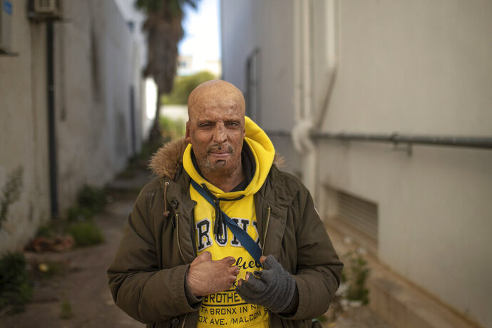 Hosni Kalaeyah, 49, a protester who self immolated during Tunisia's democratic uprising 10 years ago, poses for a portrait in Tunis, Tunisia, Tuesday, Jan. 12, 2021. Kalaeyah set himself on fire during the uprising. Now 49, Kalaeya lives with permanent scars on his face and missing fingers. (AP Photo/Mosa'ab Elshamy)